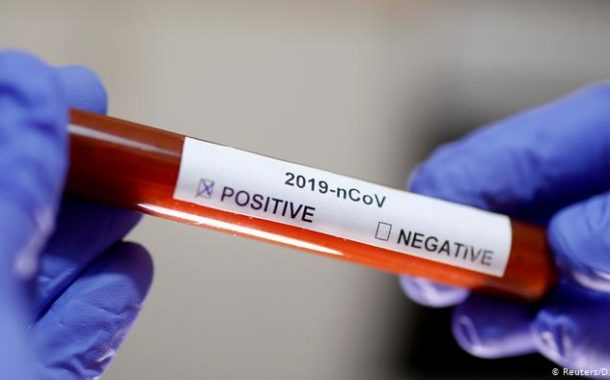 24 cazuri noi de coronavirus!